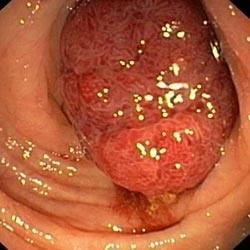 Доброкачественные опухоли толстой кишки