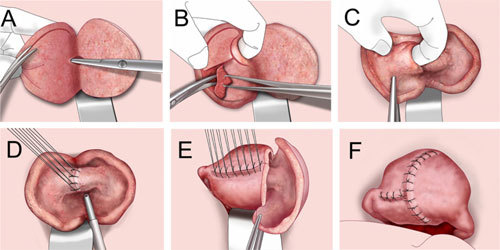 Удаление матки при лечении аденомиоза