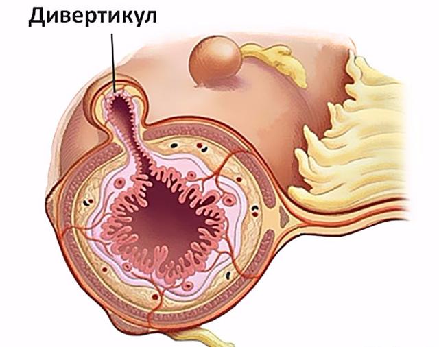 Дивертикулез толстой кишки
