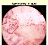 Аденомиоз матки - симптомы, признаки, диагностика, особенности аденомиоза при беременности