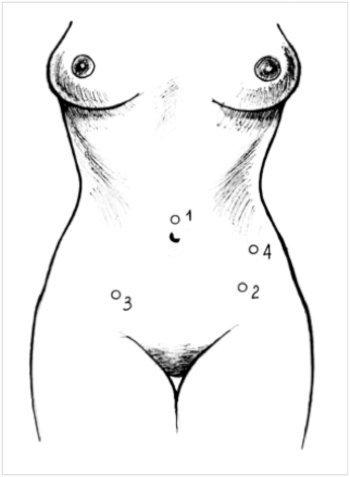 Лечение рака матки с помощью лапароскопических операций.