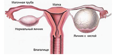 Операции при кисте яичника и опухолях яичника