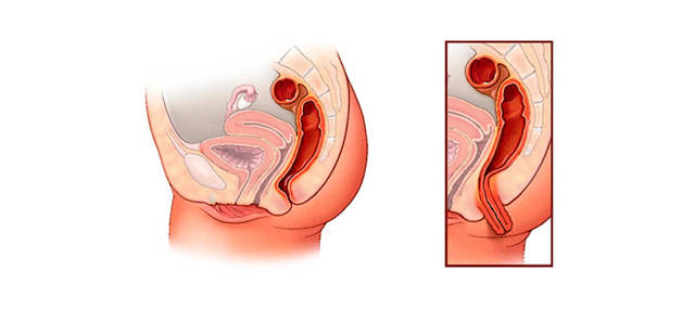 Выпадение прямой кишки (ректальный пролапс)