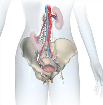Лечение опущения почки (нефроптоза) - Лапароскопическая операция.