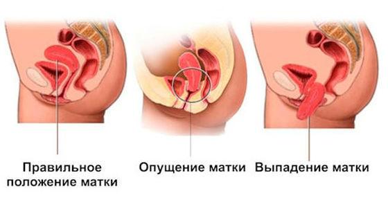 Пролапс гениталий