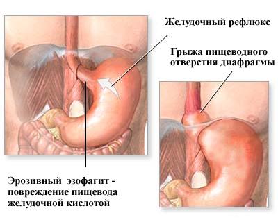 Лечение ГПОД