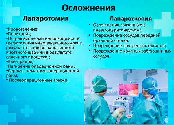 Удаление желчного пузыря - лапароскопические операции, лапароскопия.