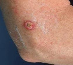 Лечение лейомиомы пищевода без скальпеля