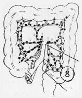 Инструменты для лапароскопической резекции при раке прямой и ободочной кишки (информация для специалистов)