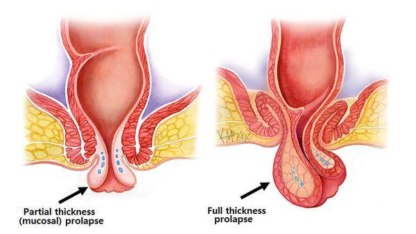Лечение ректального пролапса (выпадения прямой кишки) без скальпеля