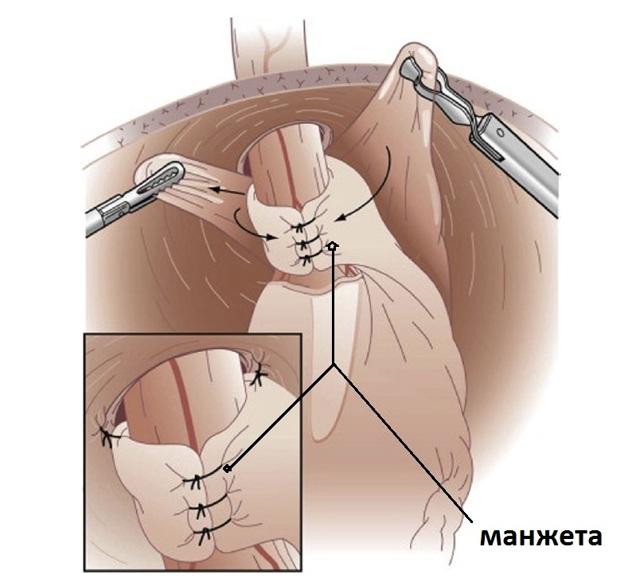 Парциальная фундопликация по Тупе на 270 градусов - лапароскопическая операция.