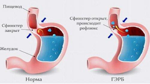 Гастроэзофагеальная рефлюксная болезнь - симптомы, лечение и операция при ГЭРБ.