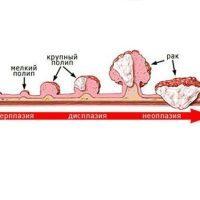 Полипы в желчном пузыре - виды, симптомы и методы лечения