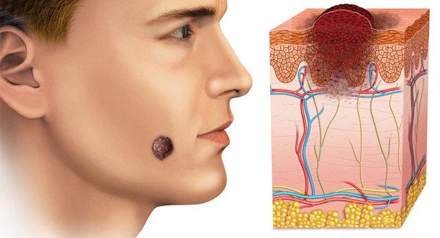 Новобразования кожи
