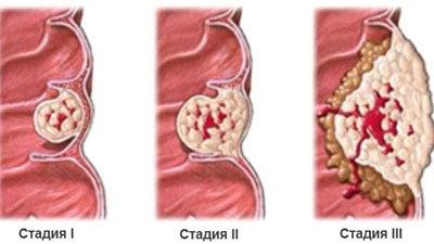 Рак прямой кишки - симптомы на ранних стадиях, прогноз и лечение 1 стадии.