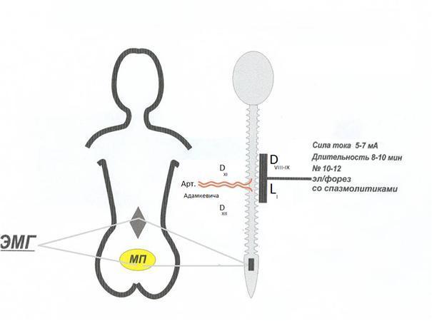 Научные труды по лечению недержания мочи