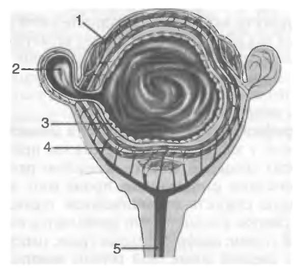 Лечение дивертикулеза (дивертикулита) толстой кишки. Лапароскопия