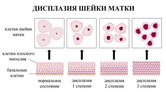 Дисплазия шейки матки (CIN) - диагностика, симптомы, лечение - Материал