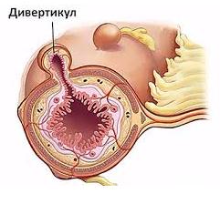 Дивертикулез толстой кишки - причины, профилактика, диагностика, симптомы - методы борьбы