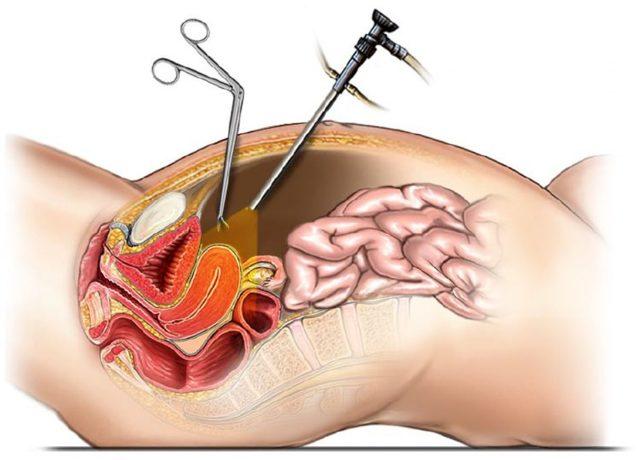 Лапароскопия при наружном эндометриозе