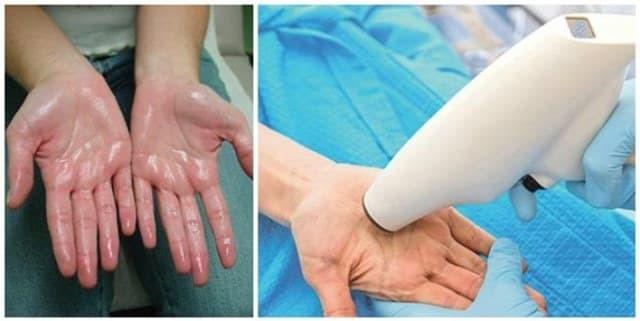 Отзывы пациентов прооперированных с гипергидрозом