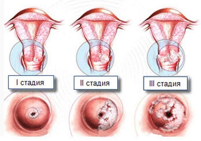 Рак шейки матки 2 стадии - симптомы, лечение, операция, прогноз.