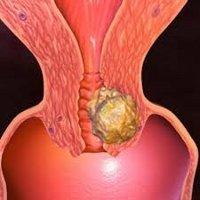 Рак шейки матки 1 стадии - симптомы, лечение, операция, прогноз.