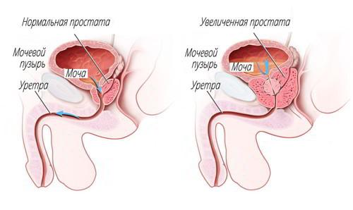 Хирургическая операция и лапароскопия в лечении опухолей (аденома, феохромоцитома, кортикостерома, альдостерома) надпочечника
