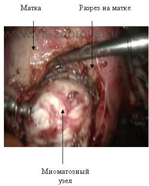 Миома матки - лечение, лапароскопия. Размеры миомы для операции