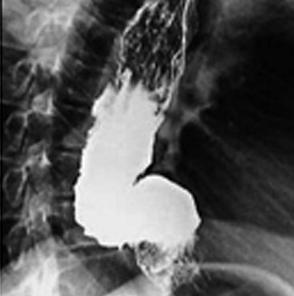 Ахалазия кардии - диагностика и методы лечения.