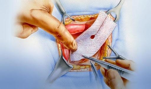 Инструменты для герниопластики