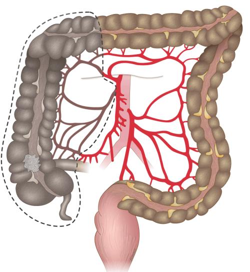 Методика лапароскопической правосторонней гемиколэктомии