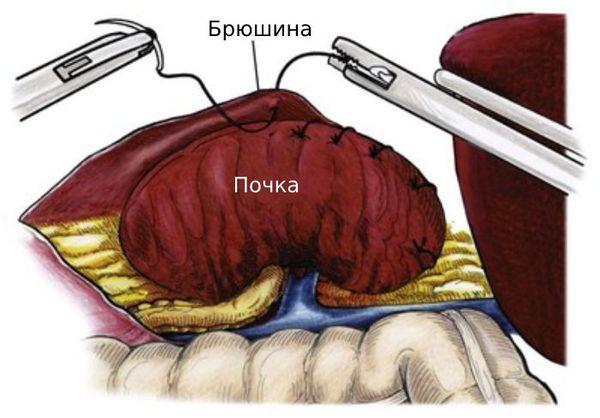 Нефроптоз (опущение почки) - признаки, диагностирование, профилактика и методы борьбы