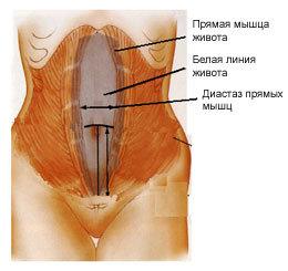 Лечение послеоперационной (вентральной) грыжи без разреза