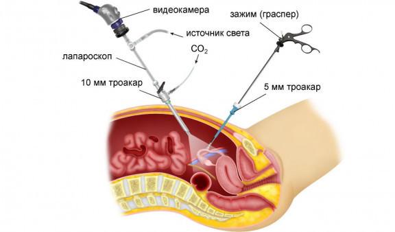 Лапароскопические операции на маточных трубах при лечении женского бесплодия