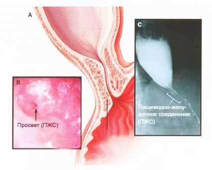 Инструменты для лапароскопической кардиомиотомии при ахалазии кардии