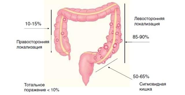 Хирургическое лечение дивертикулеза толстой кишки - уникальные методы лапароскопических операций