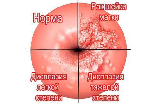 Рак шейки матки - методы лечения, диагностика, причины, симптомы.