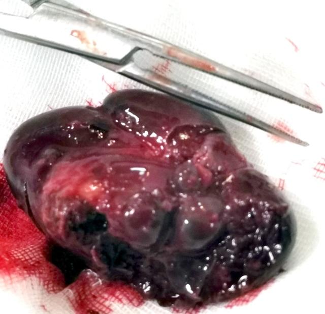 Лапароскопическая спленэктомия